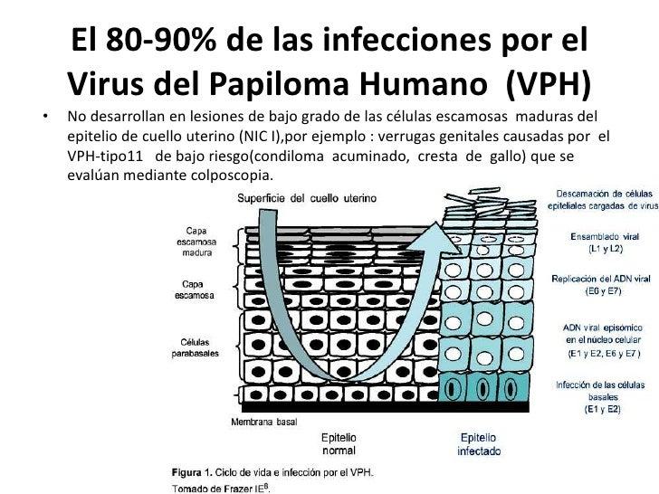 El 80-90% de las infecciones por el    Virus del Papiloma Humano (VPH)•   No desarrollan en lesiones de bajo grado de las ...