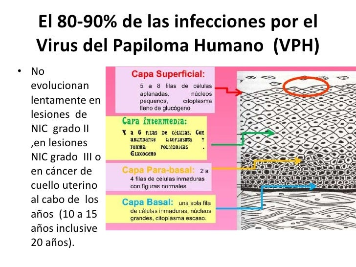 El 80-90% de las infecciones por el   Virus del Papiloma Humano (VPH)• No  evolucionan  lentamente en  lesiones de  NIC gr...