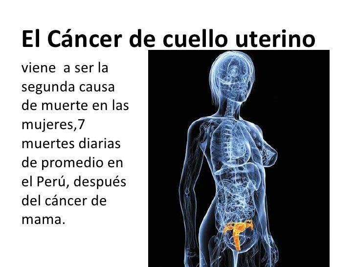 El Cáncer de cuello uterinoviene a ser lasegunda causade muerte en lasmujeres,7muertes diariasde promedio enel Perú, despu...