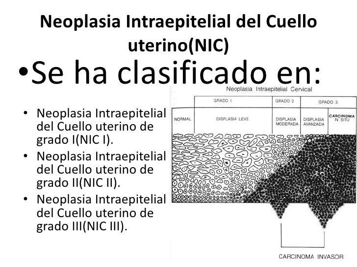 Neoplasia Intraepitelial del Cuello            uterino(NIC)•Se ha clasificado en:• Neoplasia Intraepitelial  del Cuello ut...
