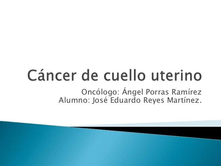 Oncólogo: Ángel Porras RamírezAlumno: José Eduardo Reyes Martínez.