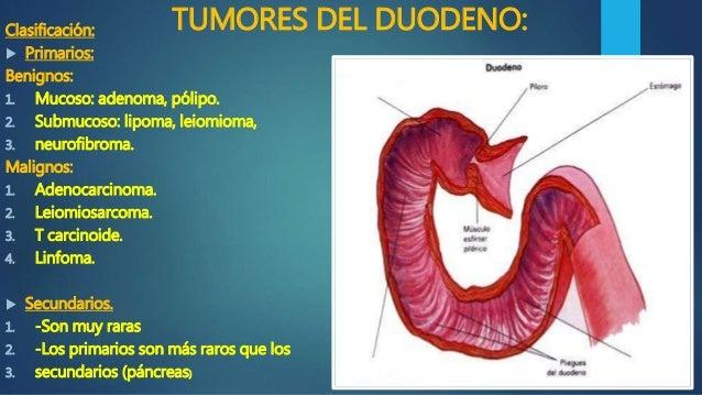 Cáncer de estómago y duodeno en Imagenología
