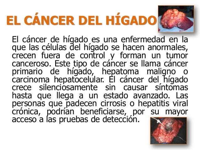Q Es Cancer Hepatico | hepatocarcinoma o c 225 ncer de h