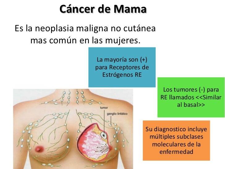Cáncer de MamaEs la neoplasia maligna no cutánea    mas común en las mujeres.                   La mayoría son (+)        ...
