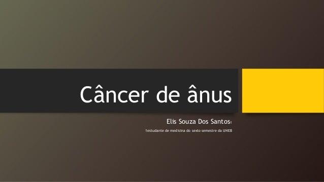 Câncer de ânus Elis Souza Dos Santos1 1estudante de medicina do sexto semestre da UNEB