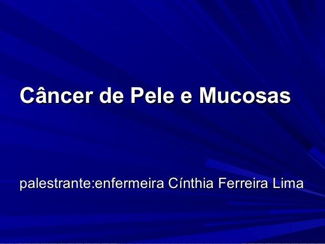 Câncer de Pele e MucosasCâncer de Pele e Mucosas palestrante:enfermeira Cínthia Ferreira Limapalestrante:enfermeira Cínthi...