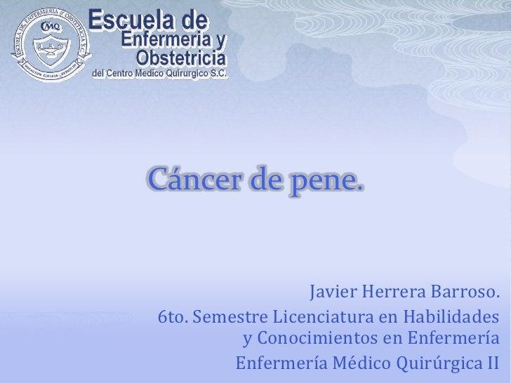 Cáncer de pene. <br />Javier Herrera Barroso.<br />6to. Semestre Licenciatura en Habilidades y Conocimientos en Enfermería...