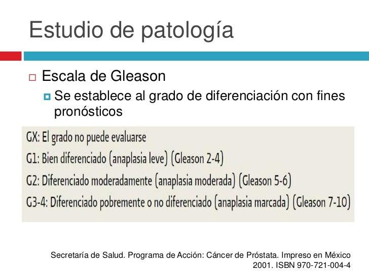 Escala gleason cancer prostata
