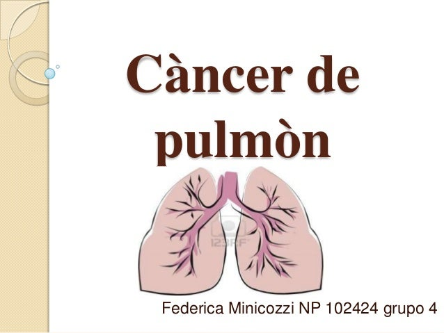 Càncer depulmònFederica Minicozzi NP 102424 grupo 4