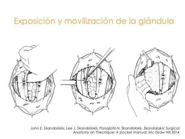 Cáncer de tiroides 2014