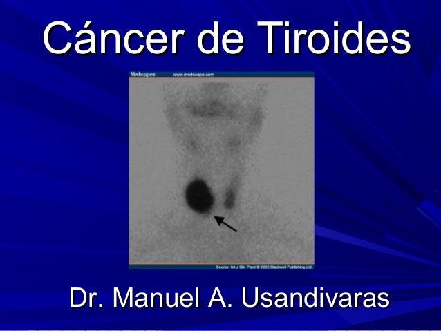 Dr. Manuel A. UsandivarasDr. Manuel A. Usandivaras Cáncer de TiroidesCáncer de Tiroides