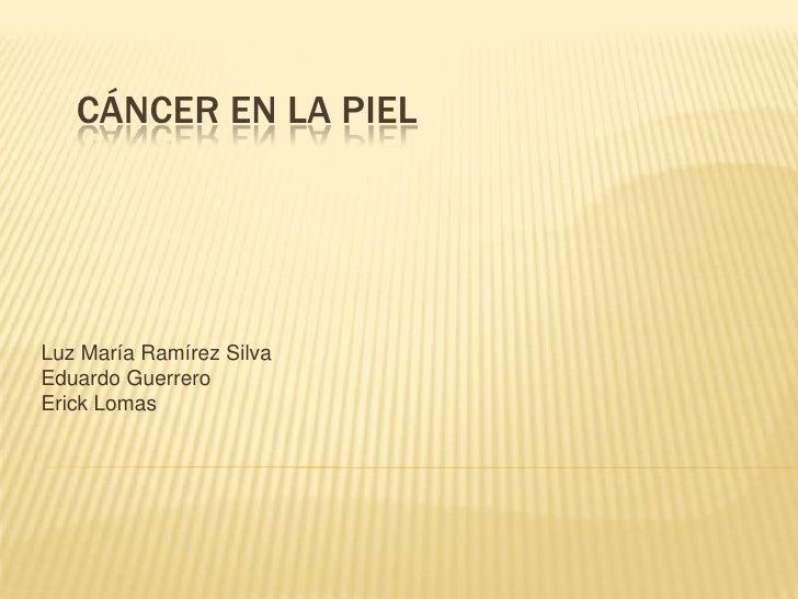 Cáncer en la piel<br />Luz María Ramírez Silva<br />Eduardo Guerrero<br />Erick Lomas<br />