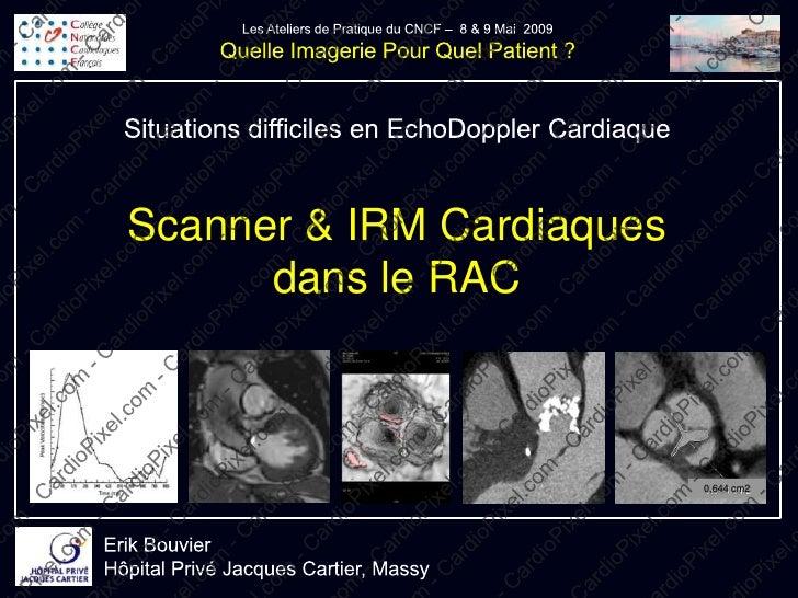 Scanner & IRM Cardiaques       dans le RAC                               0,644 cm2