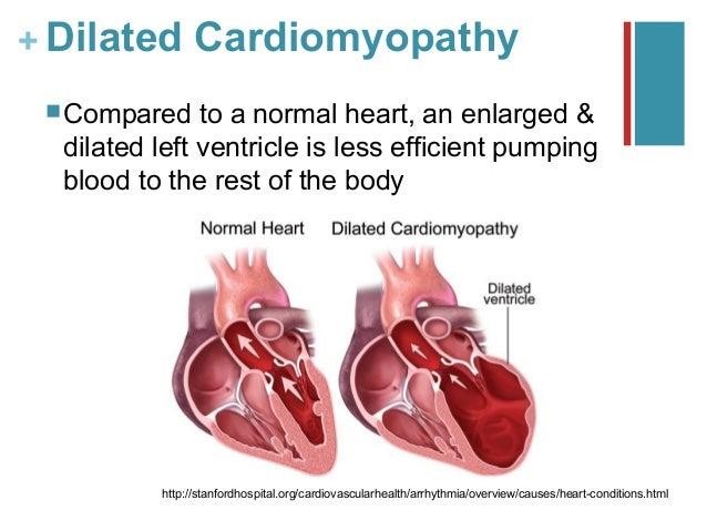 case study of ischemic heart disease
