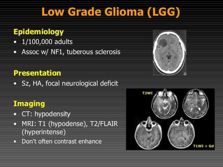 Diffuse Intrinsic Pontine Glioma (DIPG)