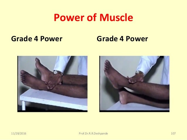 Power of Muscle Grade 4 Power Grade 4 Power 11/28/2016 Prof.Dr.R.R.Deshpande 107