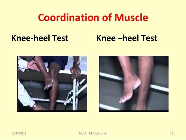 Coordination of Muscle Knee-heel Test Knee –heel Test 11/28/2016 Prof.Dr.R.R.Deshpande 121