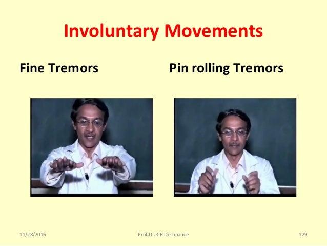 Involuntary Movements Fine Tremors Pin rolling Tremors 11/28/2016 Prof.Dr.R.R.Deshpande 129
