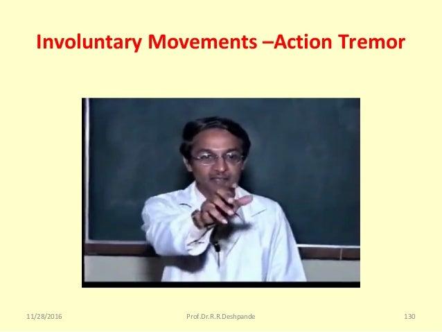 Involuntary Movements –Action Tremor 11/28/2016 Prof.Dr.R.R.Deshpande 130