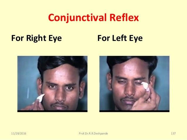 Conjunctival Reflex For Right Eye For Left Eye 11/28/2016 Prof.Dr.R.R.Deshpande 137
