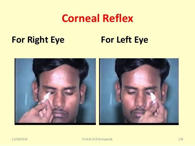 Corneal Reflex For Right Eye For Left Eye 11/28/2016 Prof.Dr.R.R.Deshpande 139