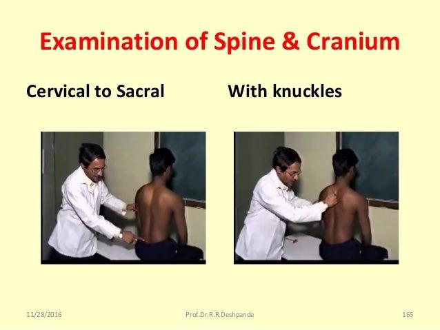 Examination of Spine & Cranium Cervical to Sacral With knuckles 11/28/2016 Prof.Dr.R.R.Deshpande 165