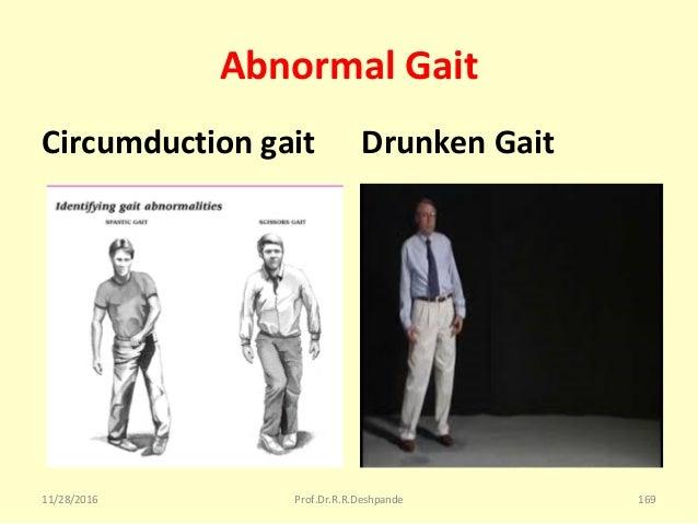 Abnormal Gait Circumduction gait Drunken Gait 11/28/2016 Prof.Dr.R.R.Deshpande 169