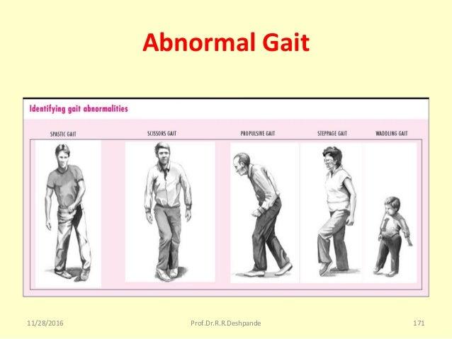 Abnormal Gait 11/28/2016 Prof.Dr.R.R.Deshpande 171
