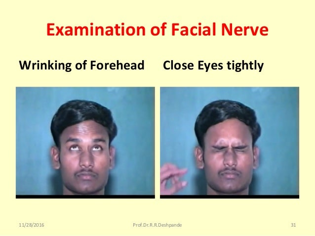 Examination of Facial Nerve Wrinking of Forehead Close Eyes tightly 11/28/2016 Prof.Dr.R.R.Deshpande 31