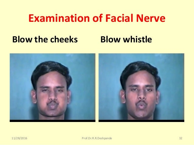 Examination of Facial Nerve Blow the cheeks Blow whistle 11/28/2016 Prof.Dr.R.R.Deshpande 32