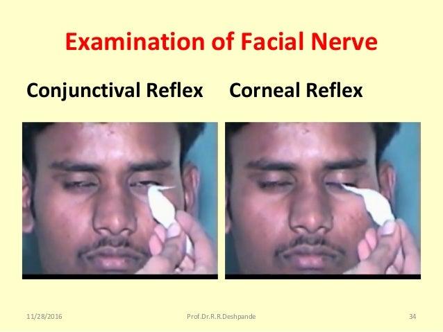 Examination of Facial Nerve Conjunctival Reflex Corneal Reflex 11/28/2016 Prof.Dr.R.R.Deshpande 34