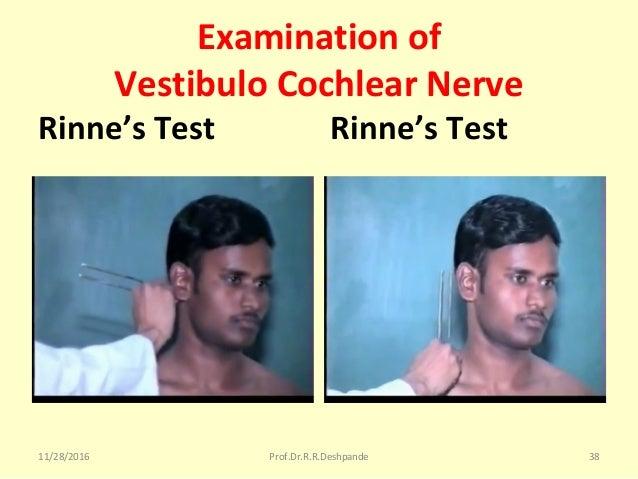Examination of Vestibulo Cochlear Nerve Rinne's Test Rinne's Test 11/28/2016 Prof.Dr.R.R.Deshpande 38