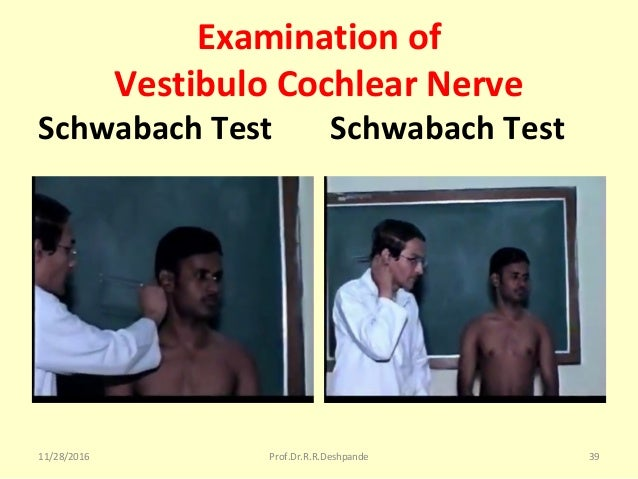 Examination of Vestibulo Cochlear Nerve Schwabach Test Schwabach Test 11/28/2016 Prof.Dr.R.R.Deshpande 39