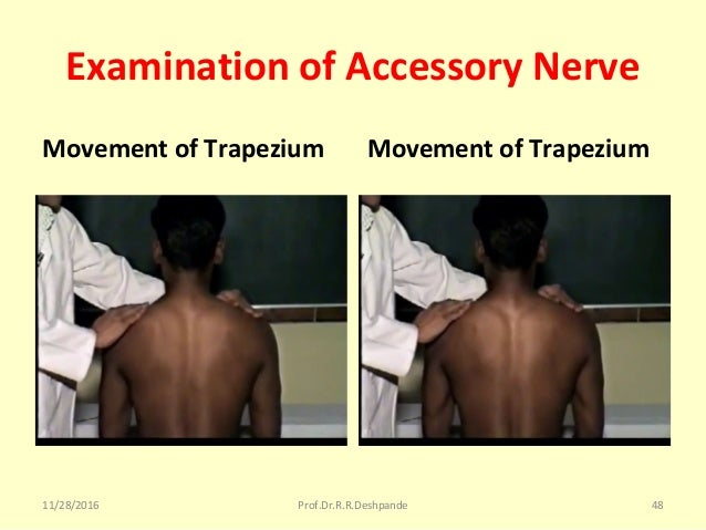 Examination of Accessory Nerve Movement of Trapezium Movement of Trapezium 11/28/2016 Prof.Dr.R.R.Deshpande 48