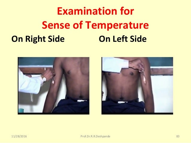 Examination for Sense of Temperature On Right Side On Left Side 11/28/2016 Prof.Dr.R.R.Deshpande 83