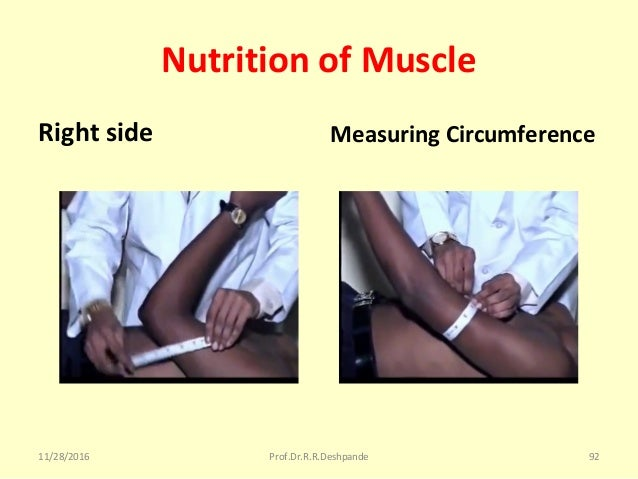 Nutrition of Muscle Right side Measuring Circumference 11/28/2016 Prof.Dr.R.R.Deshpande 92