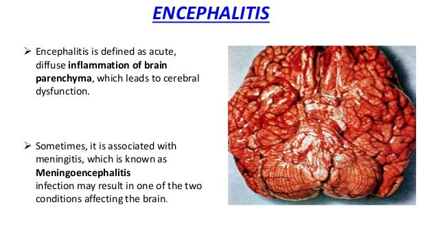 encephalitis is an infection of the brain biology essay Gene expression in the brain during reovirus encephalitis at early and late times following virus infection of the brain for computational biology and.