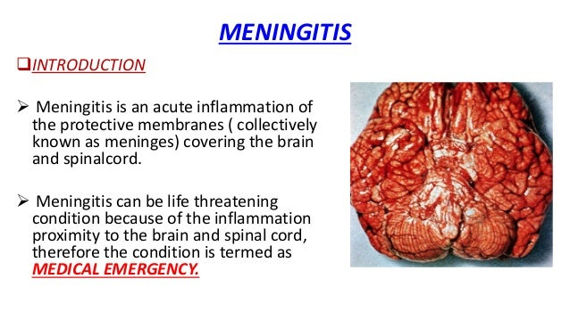 Meningitis: Overview and Causes