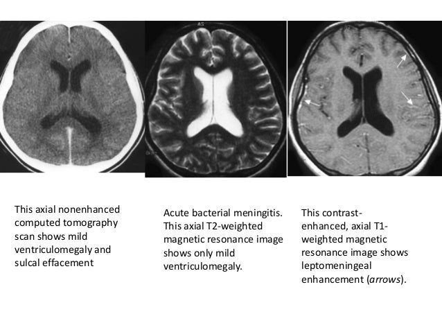 Magnetic resonance imaging mri and computed