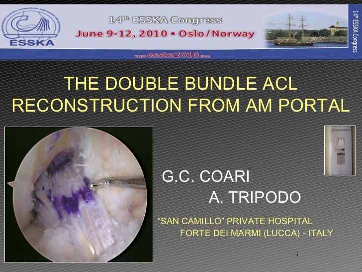 "G.C. COARI  A. TRIPODO  THE DOUBLE BUNDLE ACL RECONSTRUCTION FROM AM PORTAL "" SAN CAMILLO"" PRIVATE HOSPITAL  FORTE DEI MAR..."
