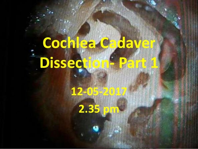 Cochlea Cadaver Dissection- Part 1 12-05-2017 2.35 pm