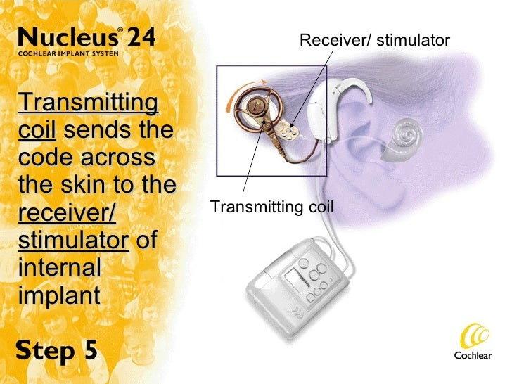 Transmitting coil  sends the code across the skin to the  receiver/ stimulator  of internal implant Transmitting coil Rece...