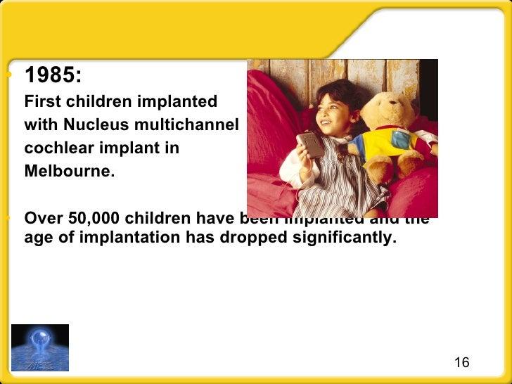 <ul><li>1985:  </li></ul><ul><li>First children implanted  </li></ul><ul><li>with Nucleus multichannel </li></ul><ul><li>c...
