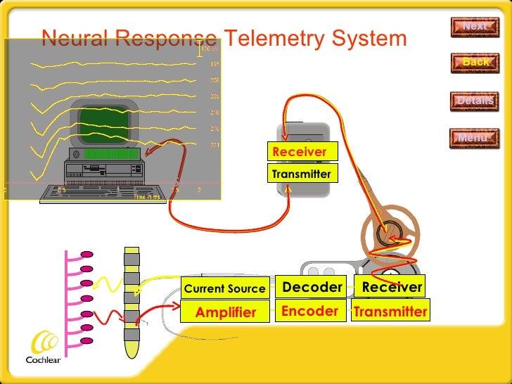 Neural Response Telemetry System Next Details Menu Back Transmitter Receiver Decoder Current Source Transmitter Encoder Am...