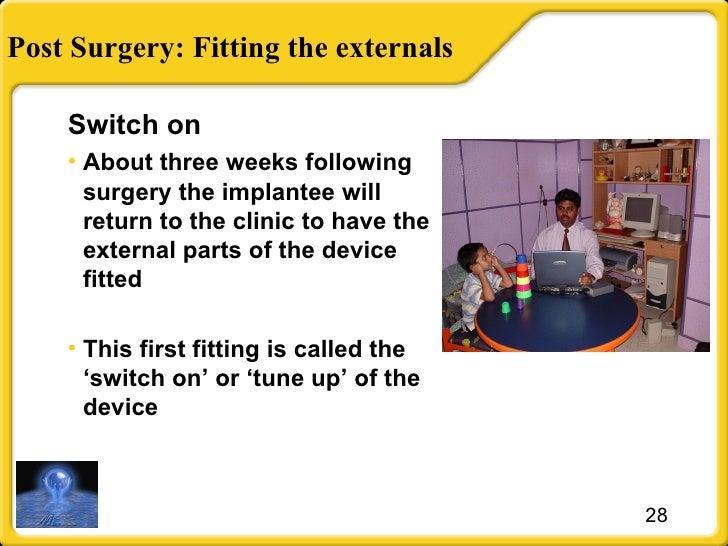 Post Surgery: Fitting the externals <ul><li>Switch on </li></ul><ul><li>About three weeks following surgery the implantee ...