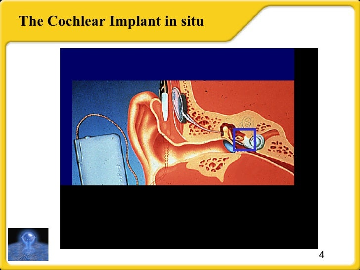 The Cochlear Implant in situ