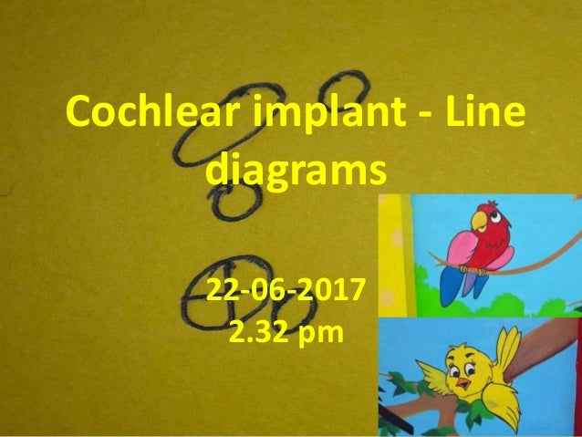 Cochlear implant - Line diagrams 22-06-2017 2.32 pm