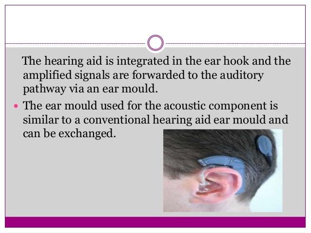  Meningitis: 9% of childhood deafness. Commonest organism to cause HL is S pneumoniae. Labyrinthitis ossificans. Implanta...