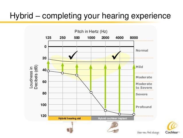 Cochlear Limited: Hearing Implant Market Leader's Earnings Recovery Offers Strong Upside Potential
