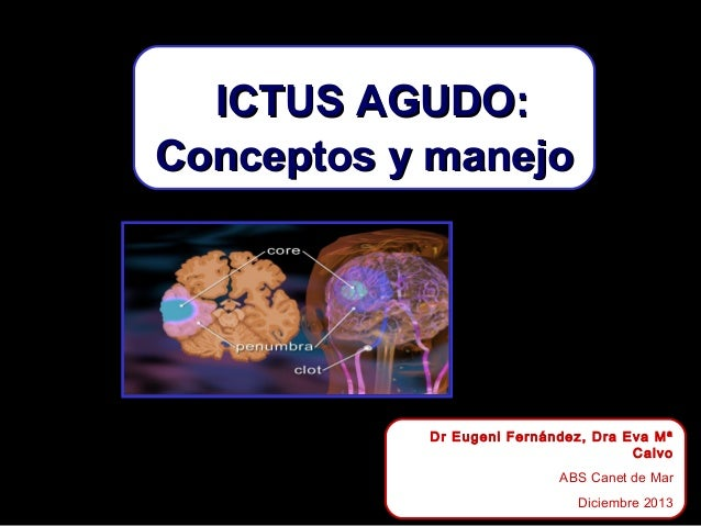 ICTUS AGUDO: Conceptos y manejo  Dr Eugeni Fernández, Dra Eva Mª Calvo ABS Canet de Mar Diciembre 2013